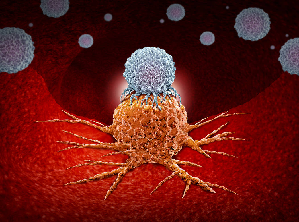 Getty Images This artist rendering shows a depiction of an immune system cell attacking a cance ...