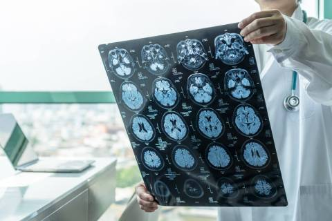 Getty Images An estimated 6.2 million Americans age 65 and older have Alzheimer's dementia i ...